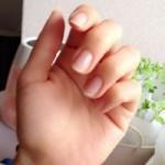 爪が割れる原因は何 縦にですが。応急処置と対処法は?